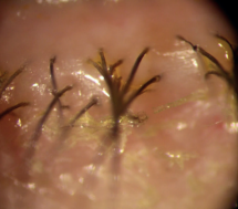 Trockene Augen, Blepharitis Syndrom, BlephEx-Behandlung Zürich Augenarzt