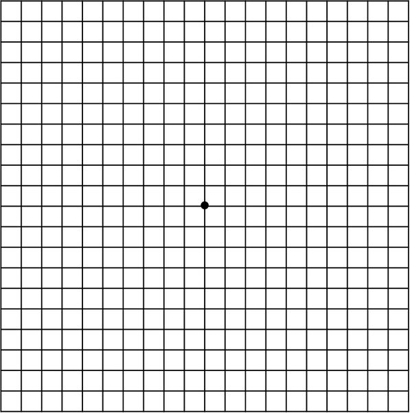 Amsler-Gitter-Test_ohne_Beschwerden.PNG