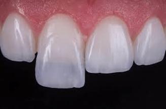 lente-de-contato-dentais.png