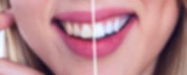 tooth-2414909_1920_edited.jpg