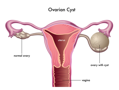 Issuing a Formal Cease and Desist to Ovarian Cysts!