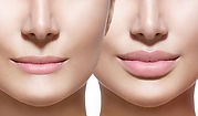 Rose Gold Aesthetics Southampton Lip Enhancement.jpg