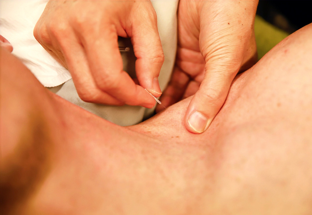 Physiotherapy & Dry needling | Wellbeing Physiotherapy Leederville