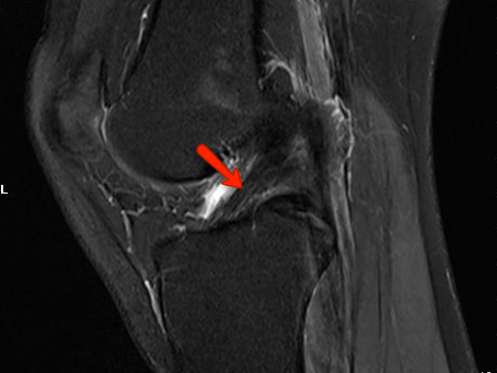 2 Common Knee Injuries That Require An MRI Scan. The Second Is Shockingly Easy To Overcome!