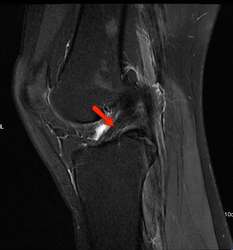 Sagittal MRI Knee Scan Normal ACL