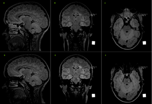Multiple Sclerosis: The Role Of MRI