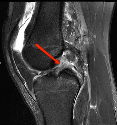 Sagittal MRI of the Knee Showing a Torn ACL