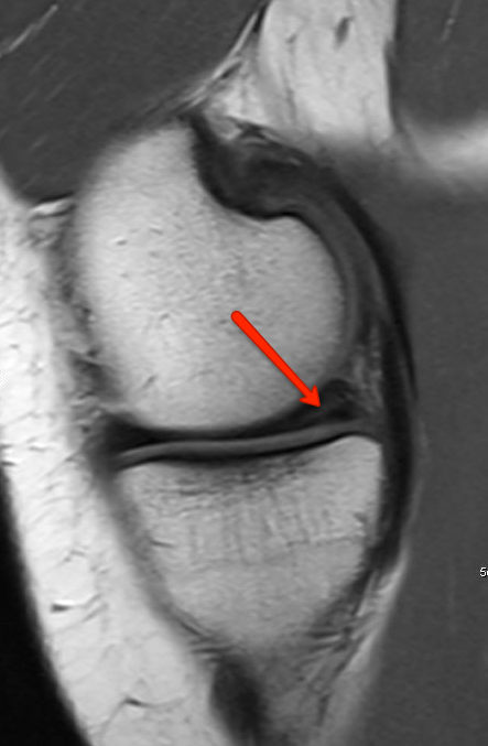MRI of the knee showing a torn Meniscus