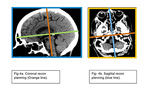 Brain 3.png