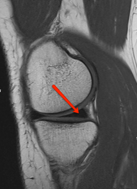 MRI of the Knee showing normal Meniscus