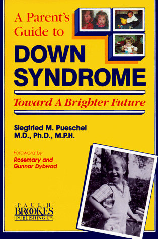 Down Syndrome by Pueschel Siegfried