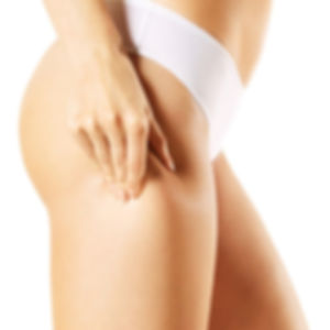 cellulite cupping.jpg