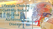 Lifestyle Choices Can Help Reduce the Risk of Alzheimer's Disease
