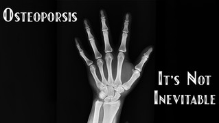 Osteoporosis - It's Not Inevitable