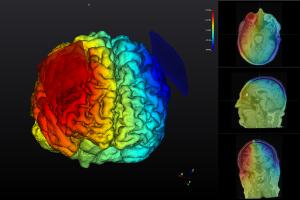 NEUROPHE tES LAB - stimulation result analysis ,brain stimulation simulaion