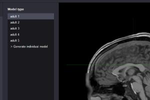 NEUROPHE tES LAB - human template, brain stimulation simulaion
