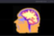 auto brain segmentation, brain stimulation, simulation, tdcs