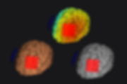 NEUROPHE tES LAB - brain color map, brain stimulation simulaion