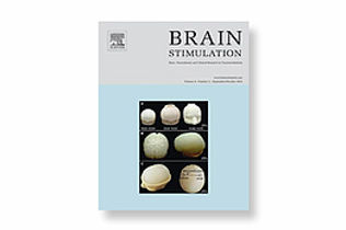 Neurophet registered brain stimulation journal