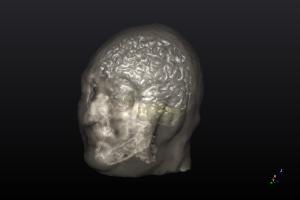 NEUROPHE tES LAB - 3D brain model ,brain stimulation simulaion