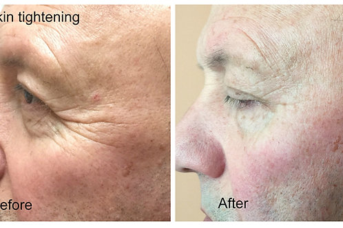 Forma RF Skin Tightening Treatment
