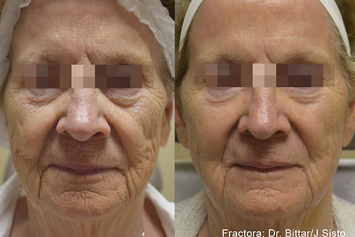 Fractora  Skin Resurfacing Treatment Full Face