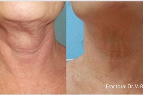 Non-Surgical Fractora Neck Lift