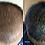 Thumbnail: Hair Restoration Treatment