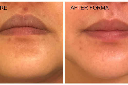 One Double Chin and Face Contouring  treatments.