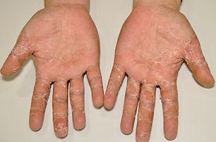 1539339640-eczema-hand.jpg