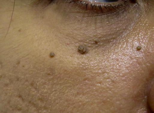 Benign Skin Growths
