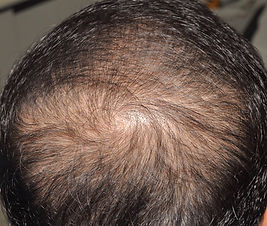 1539340066-hair-loss.jpg