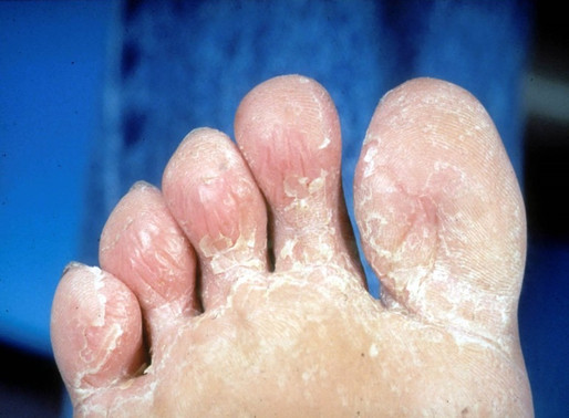 Fungal Rashes