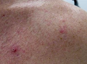 Mole & Skin Cancer Check