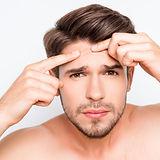 tratamiento_acne_getafe.jpg