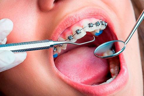 aparelho-ortodontico-preco-02.jpg