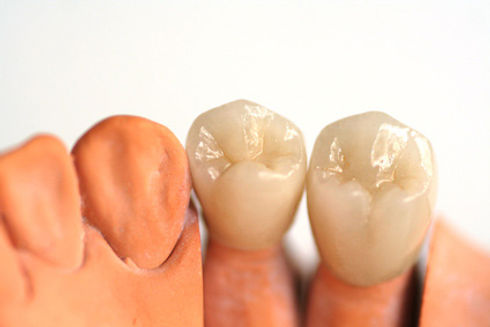 protese-dentaria5.jpg