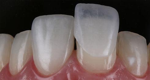 03-odontologia-estetica-lentes-contato-A