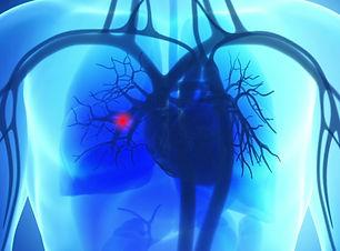 pulmonaryembolism_1280.jpg