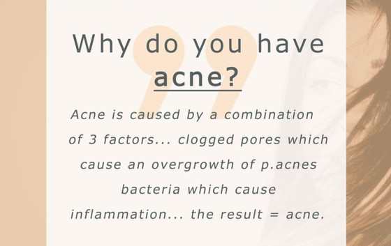 10 TIPS - ACNE Reasons