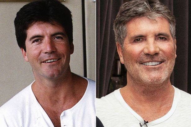 Image result for simon cowell before and after filler