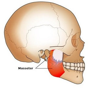 Image result for masseter muscle