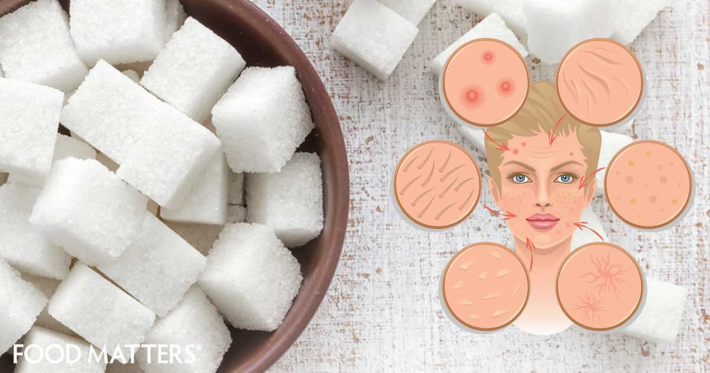 Image result for sugar bad for skin