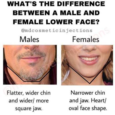 Image result for male vs female face shape in aesthetics