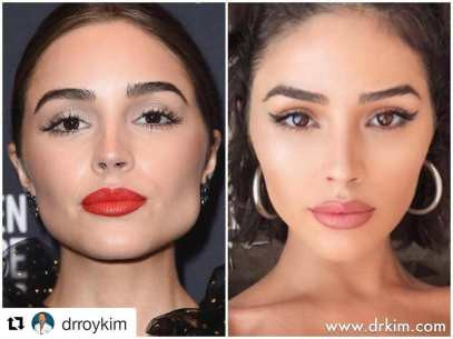 Image result for olivia culpo masseter reduction