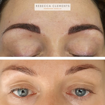 Emergency brow tattoo removal LiFT Rebec