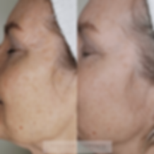 Microneedling Clementine Day Spa M1 righ