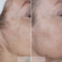 Microneedling Clementine Day Spa M1 left