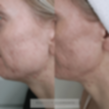 Microneedling Clementine Day Spa M2 righ