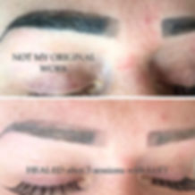 LIFT-Result-brow-removal-Girlzink-4.jpg
